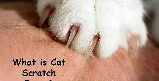 """猫爪热 """"猫抓热""""是什么,被猫抓了就发热?"""